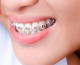 Consultório odontológico conta agora com ortodontia